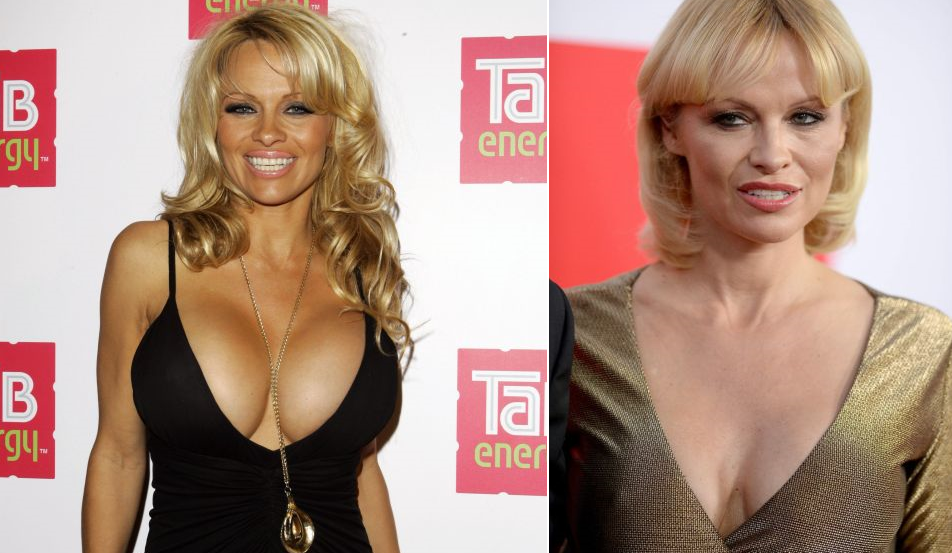 10 Celebs You Didn't Know Had Breast Reduction Surgery