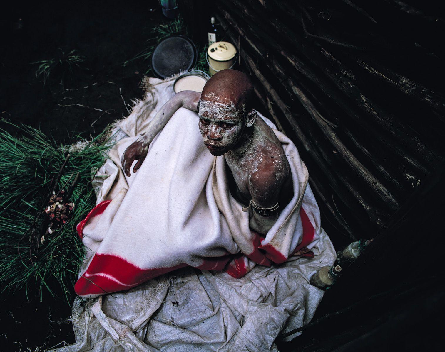 2. Adult Circumcision