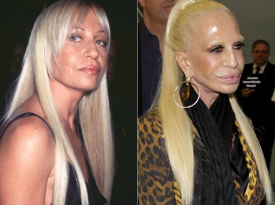 Donatella-Versace-before-and-after-plastic-surgery-06.jpg