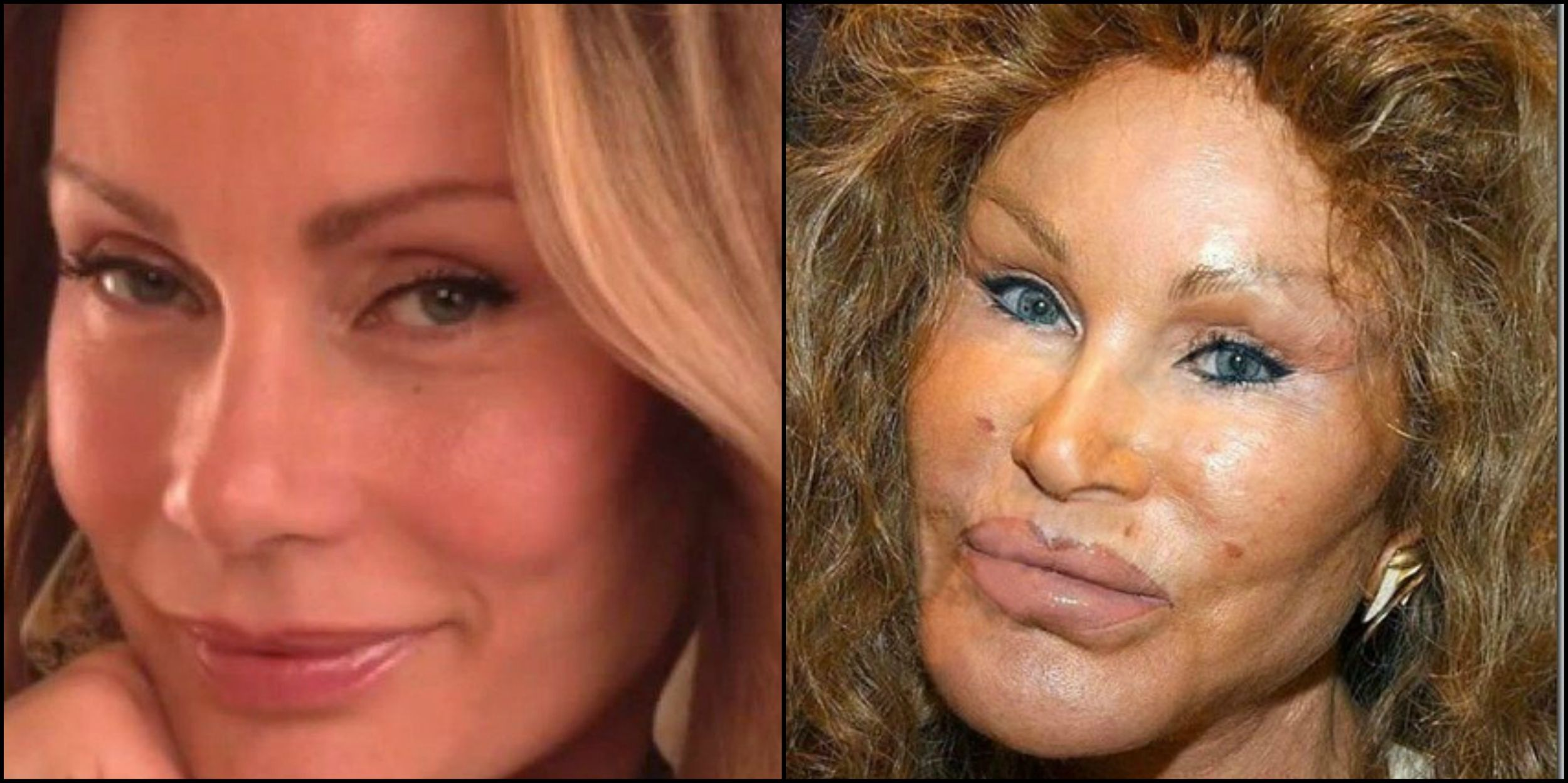 15 Once Beautiful Celebrities Who Ruined Their Own Looks