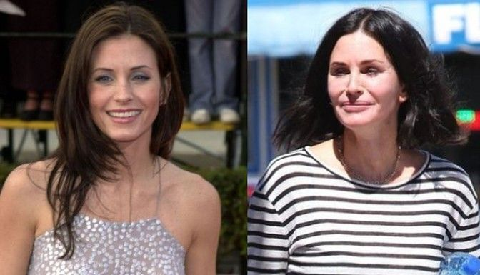 15 Pretty Actresses Who Ruined Their Face With Botox