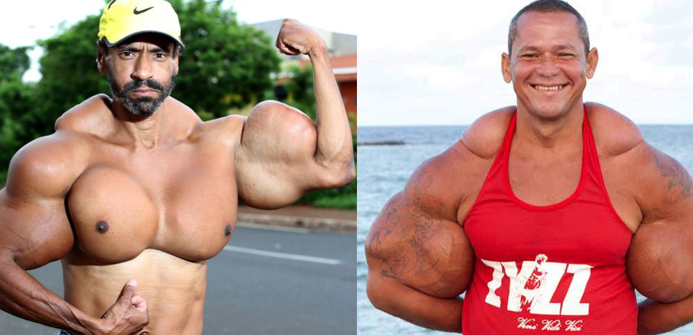 Shocking Pictures Of Bodybuilders Who Used Synthol | TheRichest